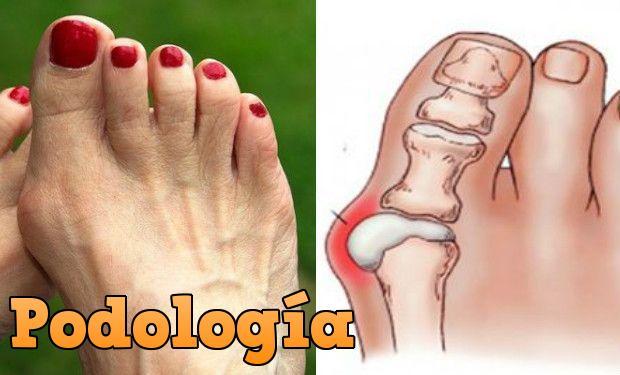 dolor al lado del dedo gordo del pie
