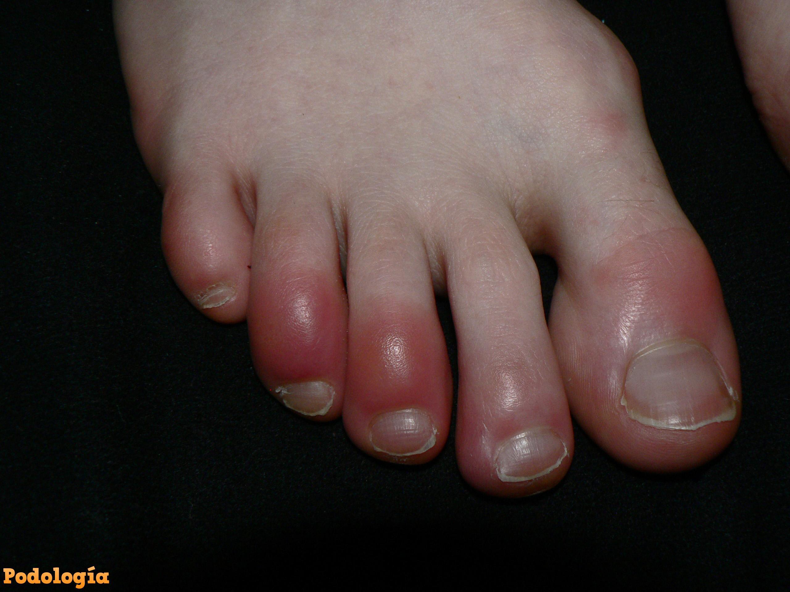 pies dolores